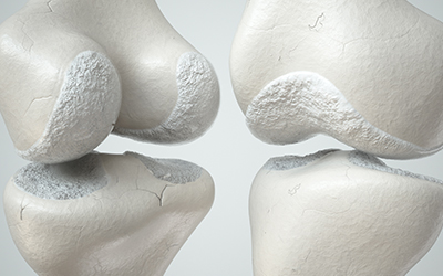 Knee joint with cartilage loss due to Arthose, front and back- 3D Rendering