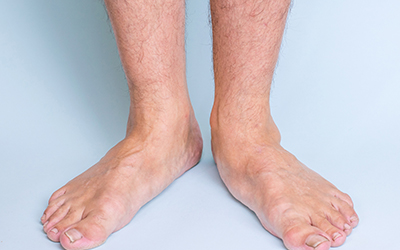 Legs of a man with a pronounced flat feet. Front view.