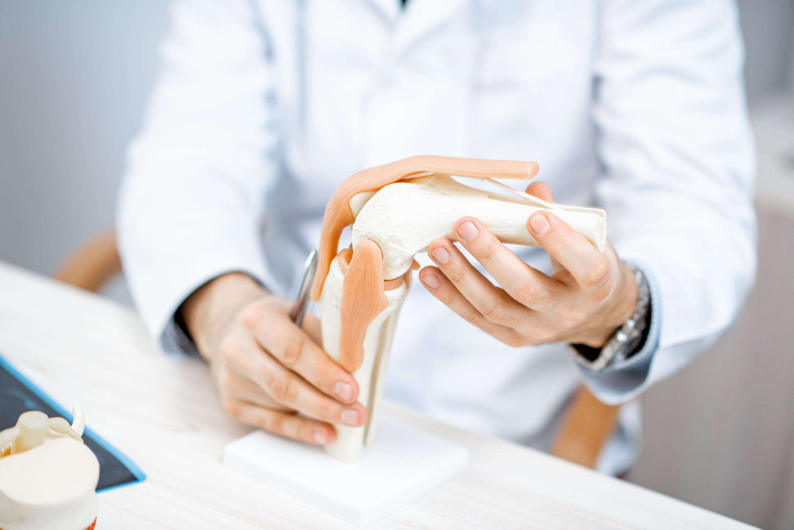 Therapist showing knee joint model